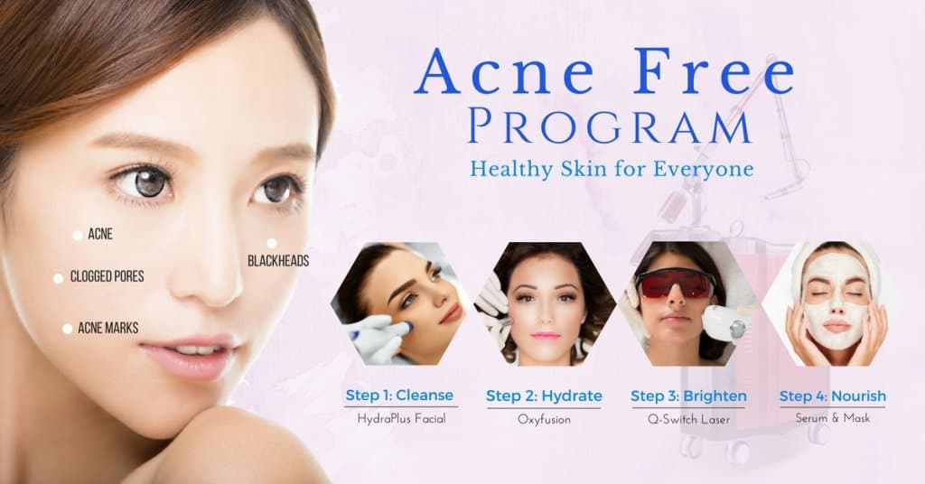 acne treatment singapore