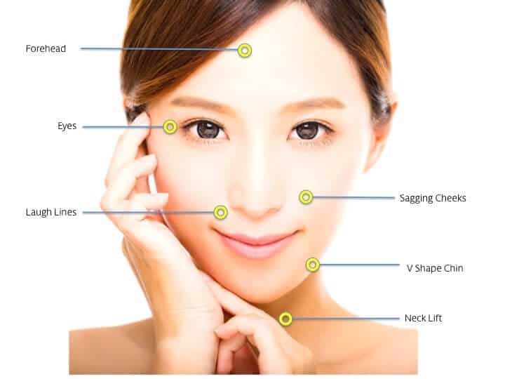 face thread lift singapore