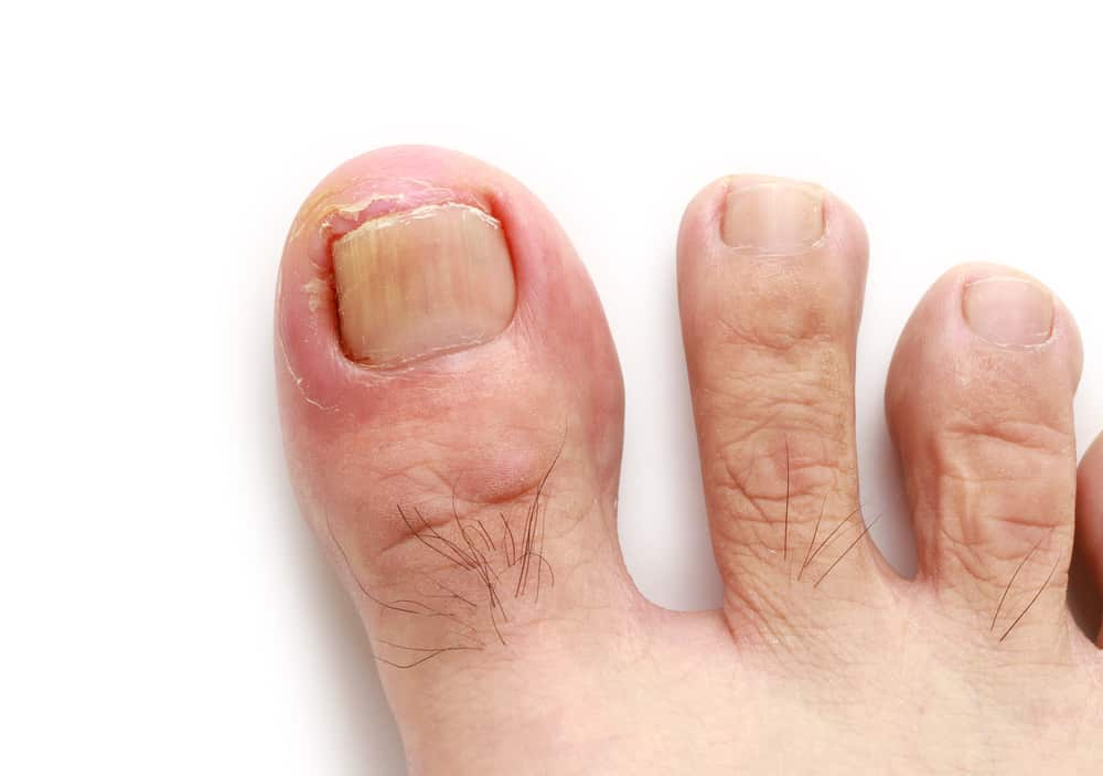 Sg Guide How To Treat Ingrown Toenail Without Surgery Sg Guide